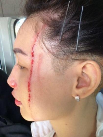 Cô gái bị kangaroo cào rách mặt. Ảnh: Shane Lewis.