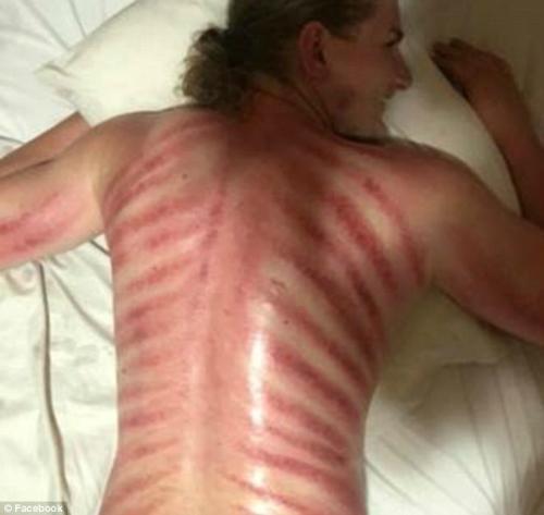 Hôm sau, Matthew phát hiện lưng mình lằn những vệt đỏ từ lưng tới hông.Ảnh: Matthew Raison.