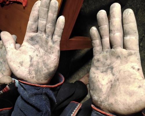 Bàn tay của anh Triệu Tạ Vủi sau khi tham gia lễ nhảy lửa.