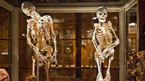 Bộ xương của Harry Eastlack (trái) và Carol Orzel. Đây là những người từng mắc chứng người hóa đá FOP hiếm gặp, khiến các mô liên kết mềm đều tạo thành xương. Ảnh: Whyy.