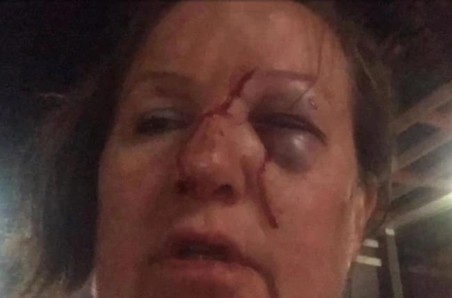 Brenda bị thương ở mặt sau khi quay video và bị tấn công. Ảnh: 7News.