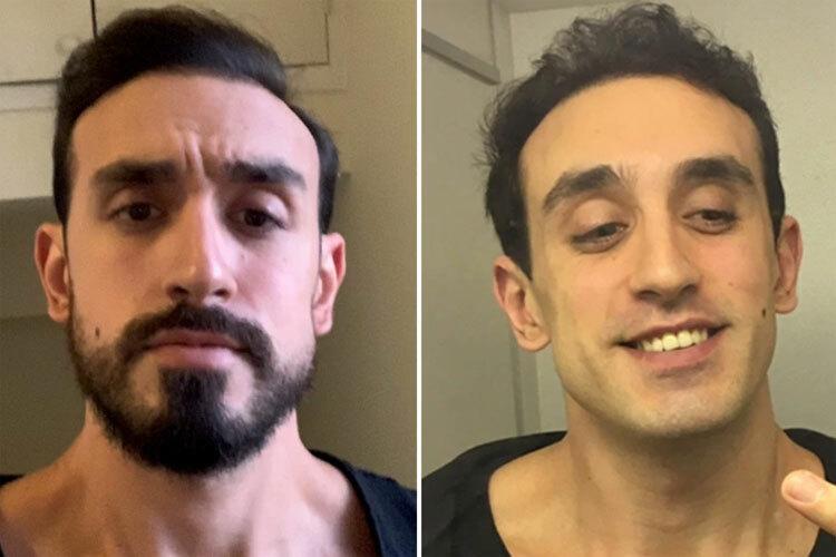Rob trước và sau khi cạo râu. Ảnh: Sun.