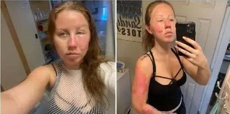 Tai nạn đã khiến nữ khách bị bỏng cấp độ 2. Ảnh: Marissa Daniel