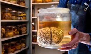 Những bảo tàng bộ não nổi tiếng thế giới